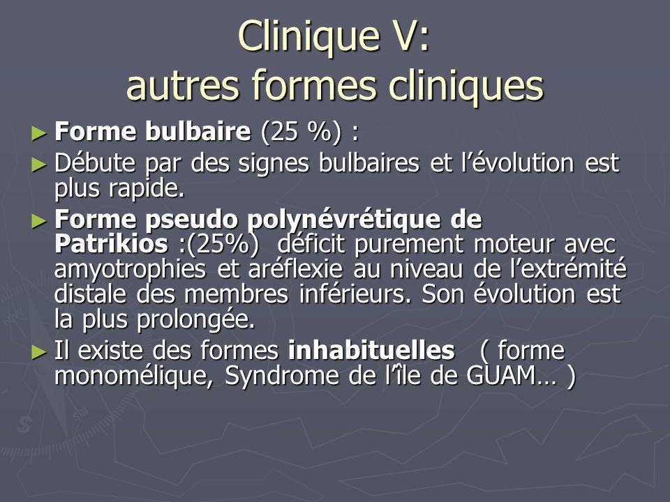 Clinique V: autres formes cliniques Forme bulbaire (25 %) : Forme bulbaire (25 %) : Débute par des signes bulbaires et lévolution est plus rapide.