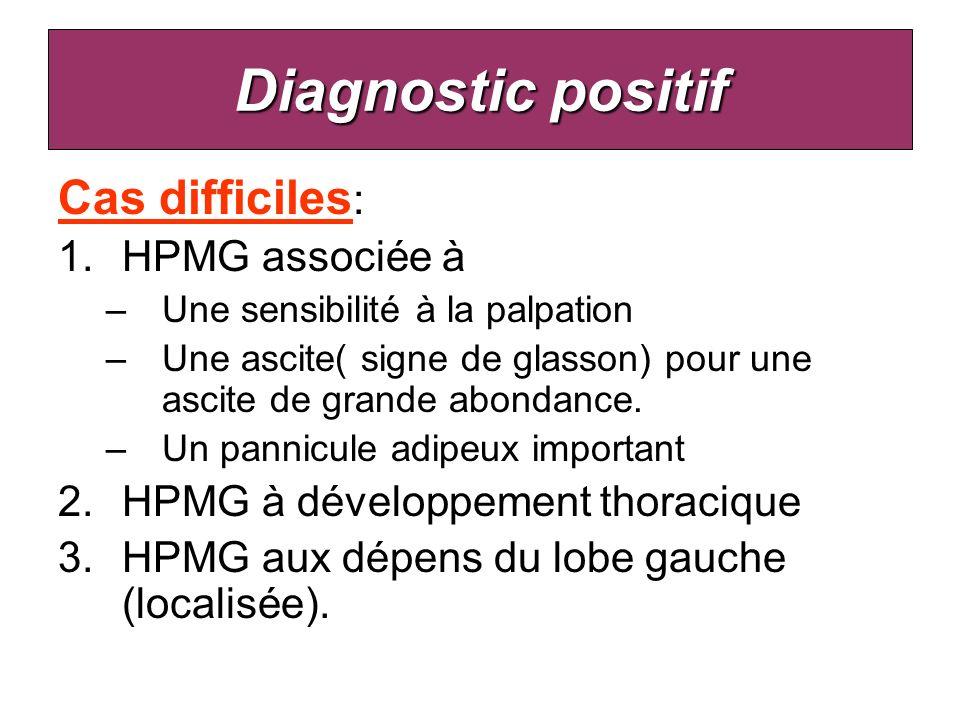 Diagnostic positif Cas difficiles : 1.HPMG associée à –Une sensibilité à la palpation –Une ascite( signe de glasson) pour une ascite de grande abondan