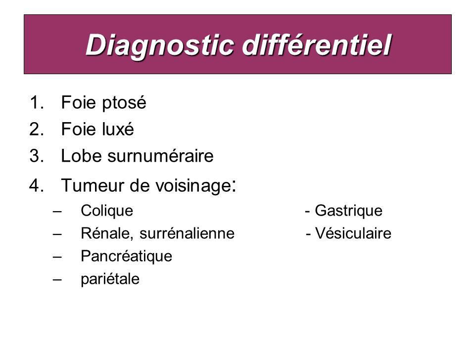 Diagnostic différentiel 1.Foie ptosé 2.Foie luxé 3.Lobe surnuméraire 4.Tumeur de voisinage : –Colique - Gastrique –Rénale, surrénalienne - Vésiculaire