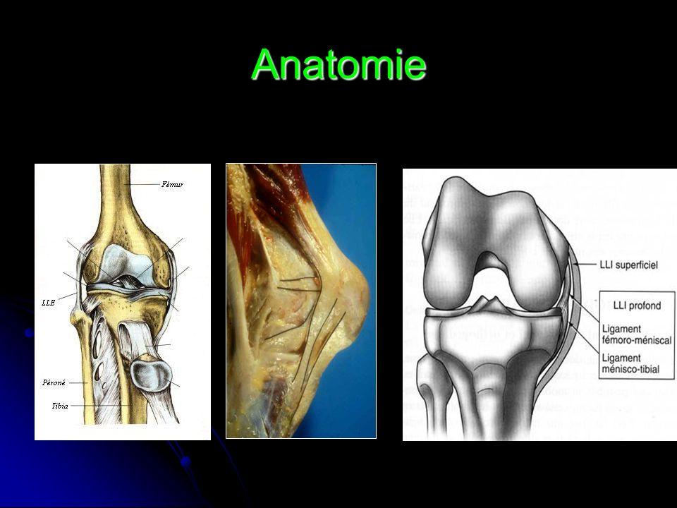 Laxité anterieure Le pivot shift de Mac Intosh «When I pivote my knee shifts» : cest ainsi quun joueur de hockey décrivait ses symptômes : «quand je pivote, mon genou glisse».
