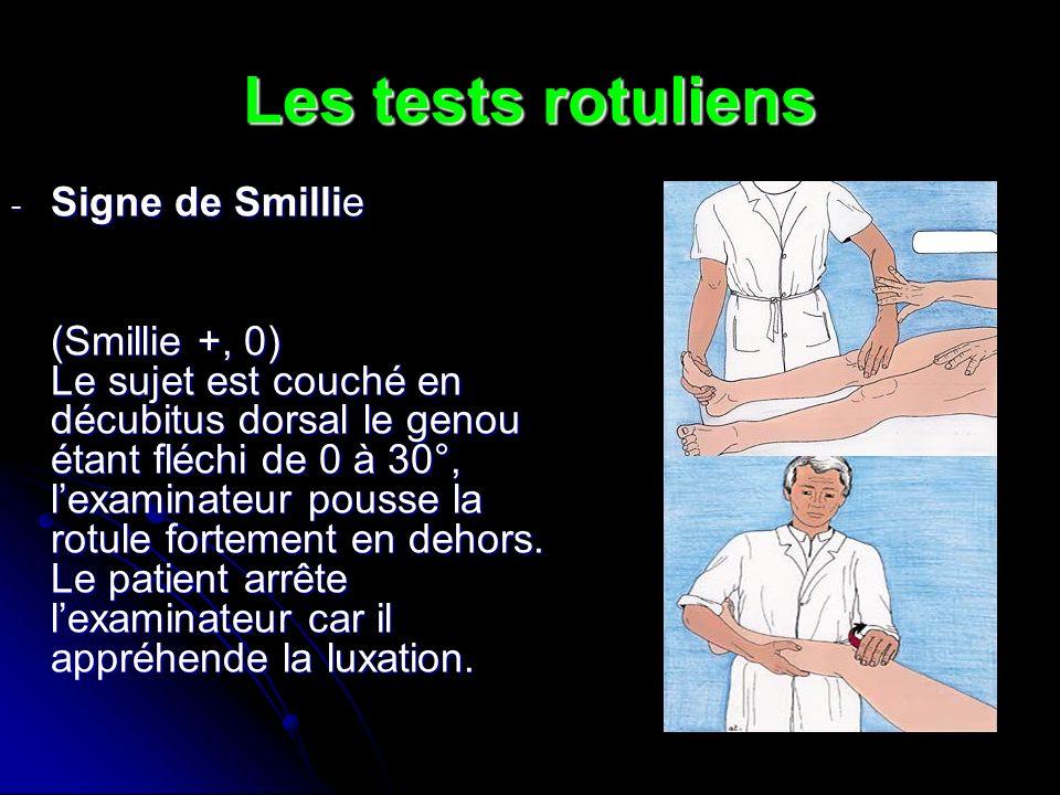 Les tests rotuliens - Signe de Smillie (Smillie +, 0) Le sujet est couché en décubitus dorsal le genou étant fléchi de 0 à 30°, lexaminateur pousse la