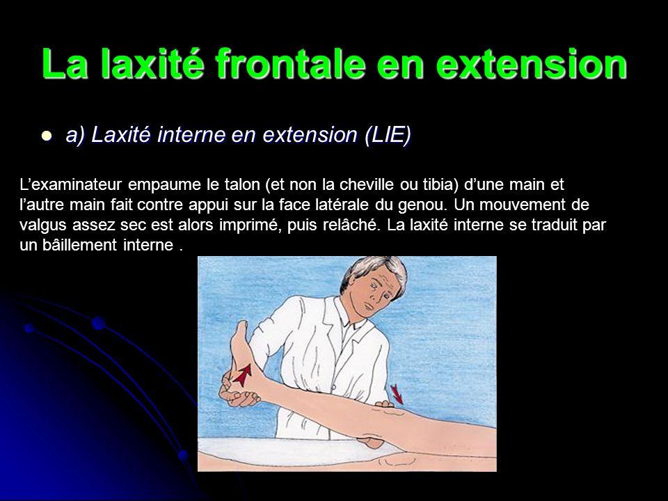 La laxité frontale en extension a) Laxité interne en extension (LIE) a) Laxité interne en extension (LIE) Lexaminateur empaume le talon (et non la che