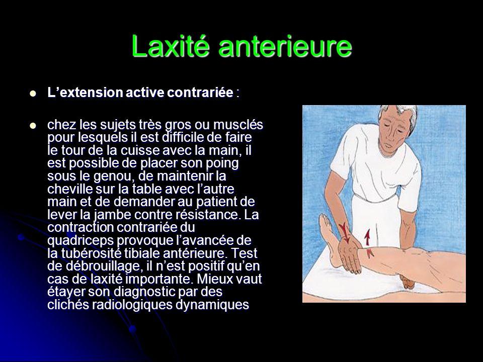 Laxité anterieure Lextension active contrariée : Lextension active contrariée : chez les sujets très gros ou musclés pour lesquels il est difficile de