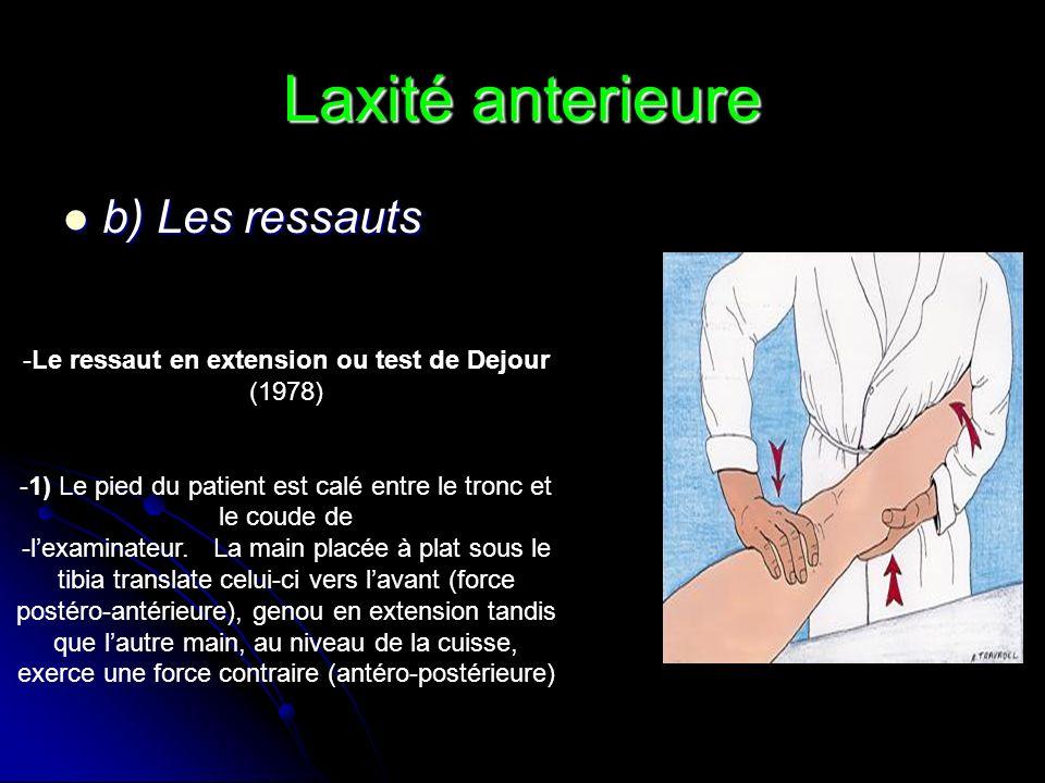 Laxité anterieure b) Les ressauts b) Les ressauts -Le ressaut en extension ou test de Dejour (1978) -1) Le pied du patient est calé entre le tronc et