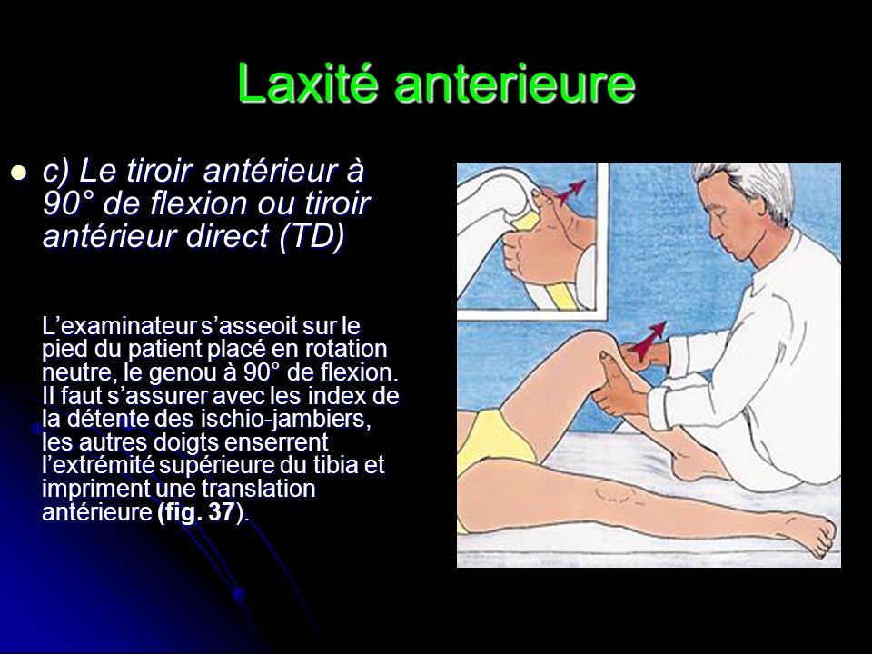 Laxité anterieure c) Le tiroir antérieur à 90° de flexion ou tiroir antérieur direct (TD) c) Le tiroir antérieur à 90° de flexion ou tiroir antérieur