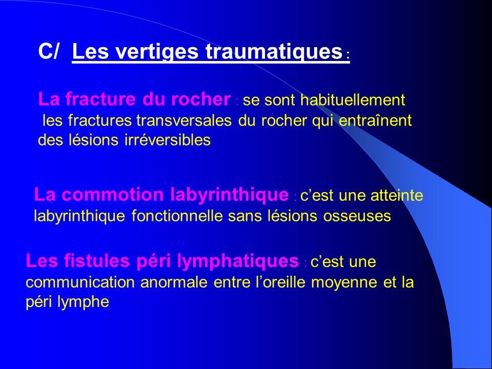 C/ Les vertiges traumatiques : La fracture du rocher : se sont habituellement les fractures transversales du rocher qui entraînent des lésions irréver