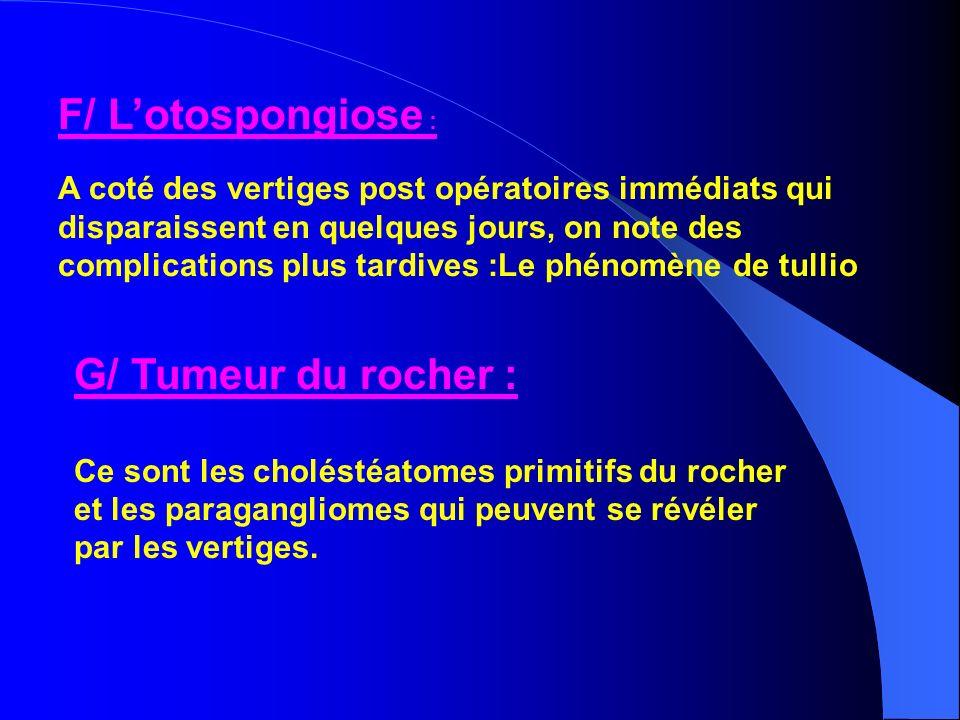 F/ Lotospongiose : A coté des vertiges post opératoires immédiats qui disparaissent en quelques jours, on note des complications plus tardives :Le phé
