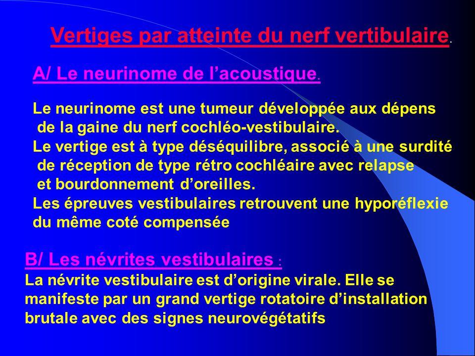 Vertiges par atteinte du nerf vertibulaire. A/ Le neurinome de lacoustique. Le neurinome est une tumeur développée aux dépens de la gaine du nerf coch