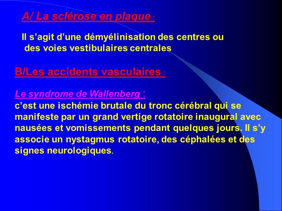 A/ La sclérose en plaque : Il sagit dune démyélinisation des centres ou des voies vestibulaires centrales B/Les accidents vasculaires : Le syndrome de