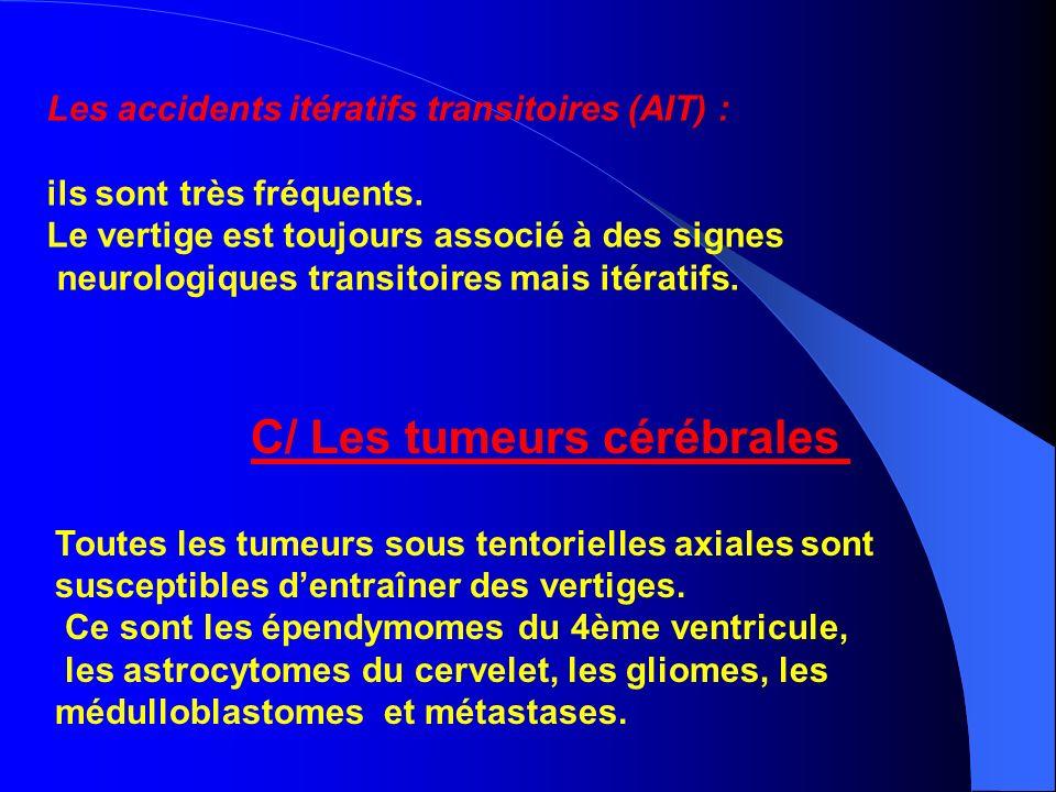 Les accidents itératifs transitoires (AIT) : ils sont très fréquents. Le vertige est toujours associé à des signes neurologiques transitoires mais ité