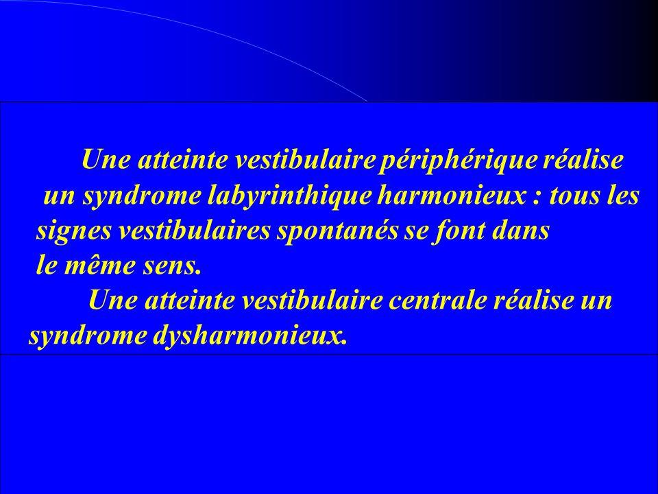 Une atteinte vestibulaire périphérique réalise un syndrome labyrinthique harmonieux : tous les signes vestibulaires spontanés se font dans le même sen