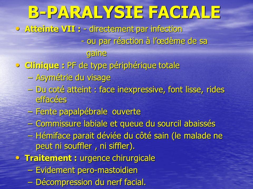B-PARALYSIE FACIALE B-PARALYSIE FACIALE Atteinte VII : - directement par infection Atteinte VII : - directement par infection - ou par réaction à lœdè