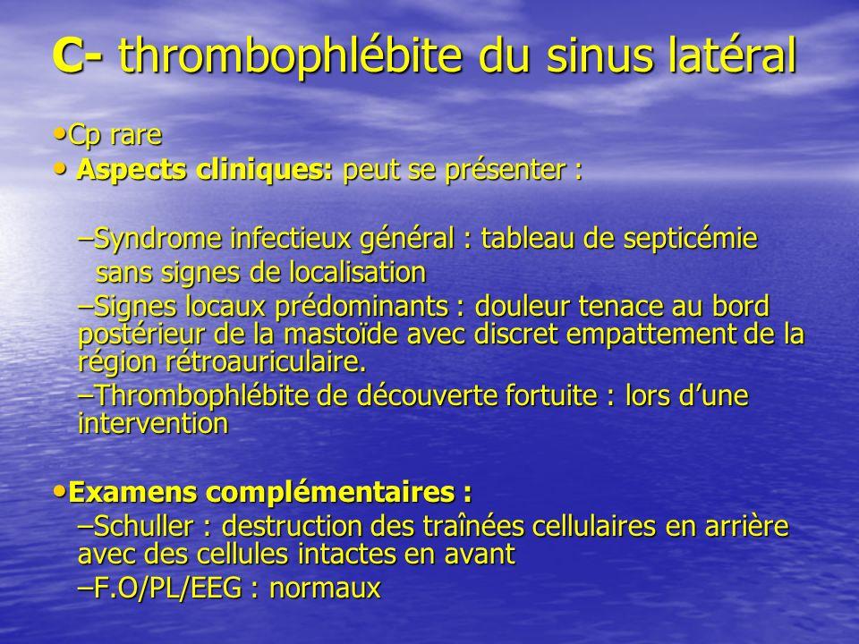 C- thrombophlébite du sinus latéral Cp rare Cp rare Aspects cliniques: peut se présenter : Aspects cliniques: peut se présenter : –Syndrome infectieux