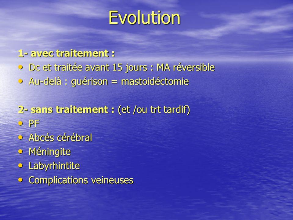 Evolution 1- avec traitement : Dc et traitée avant 15 jours : MA réversible Dc et traitée avant 15 jours : MA réversible Au-delà : guérison = mastoidé