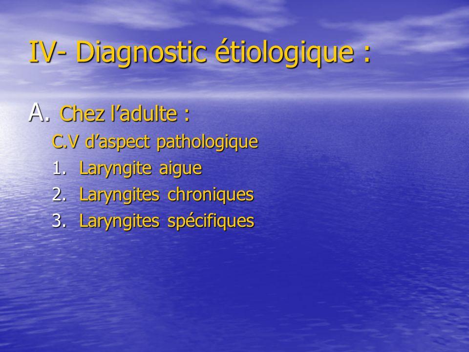 IV- Diagnostic étiologique : A. Chez ladulte : C.V daspect pathologique 1.Laryngite aigue 2.Laryngites chroniques 3.Laryngites spécifiques