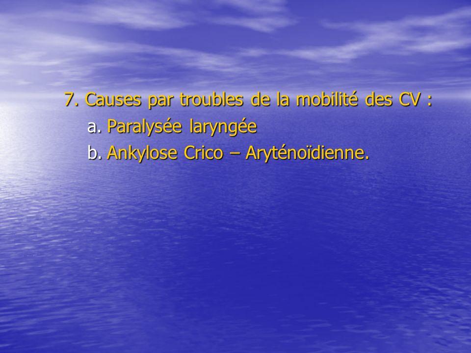 7. Causes par troubles de la mobilité des CV : a.Paralysée laryngée b.Ankylose Crico – Aryténoïdienne.