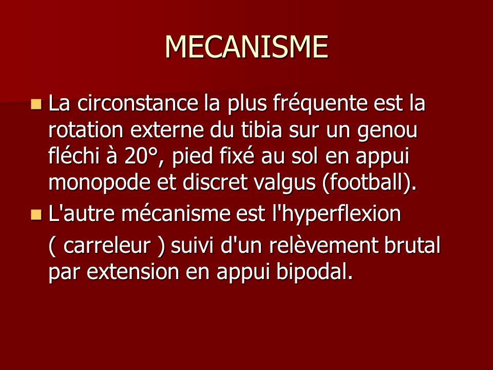 MECANISME La circonstance la plus fréquente est la rotation externe du tibia sur un genou fléchi à 20°, pied fixé au sol en appui monopode et discret