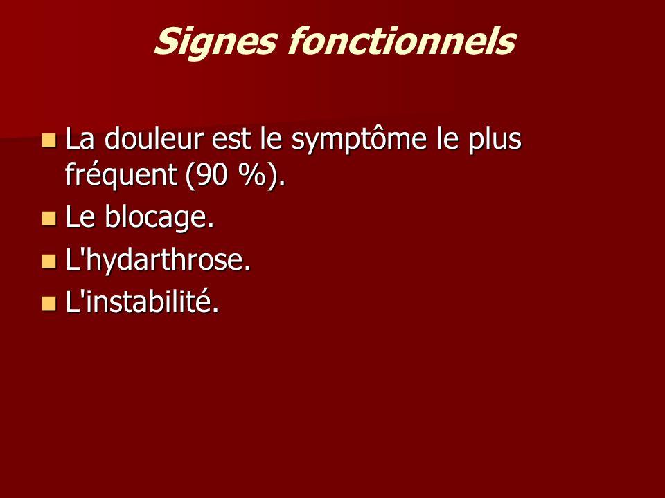 Signes fonctionnels La douleur est le symptôme le plus fréquent (90 %). La douleur est le symptôme le plus fréquent (90 %). Le blocage. Le blocage. L'