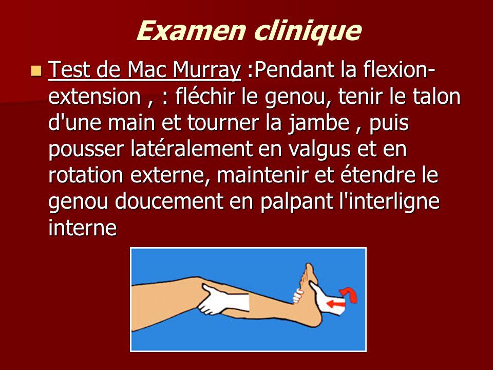 Examen clinique Test de Mac Murray :Pendant la flexion- extension, : fléchir le genou, tenir le talon d'une main et tourner la jambe, puis pousser lat