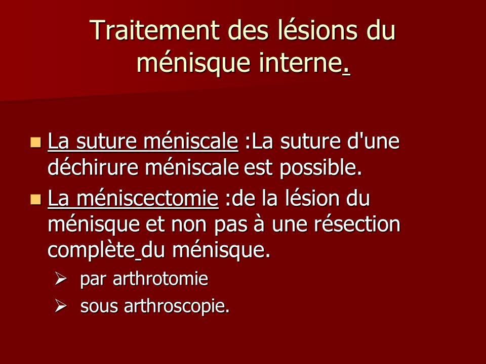 Traitement des lésions du ménisque interne. La suture méniscale :La suture d'une déchirure méniscale est possible. La suture méniscale :La suture d'un