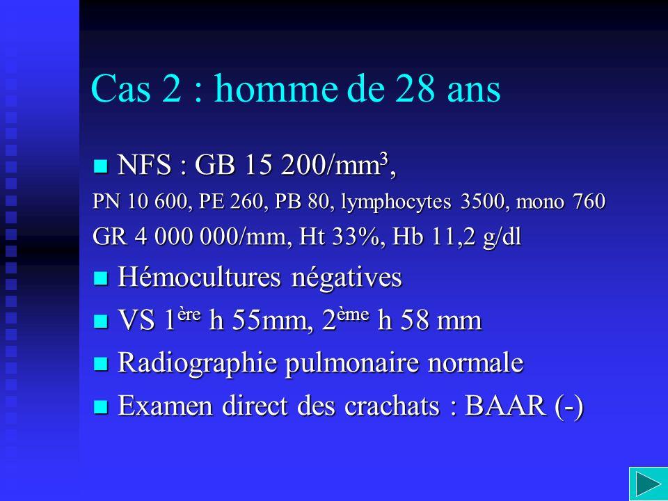 Cas 2 : homme de 28 ans NFS : GB 15 200/mm 3, NFS : GB 15 200/mm 3, PN 10 600, PE 260, PB 80, lymphocytes 3500, mono 760 GR 4 000 000/mm, Ht 33%, Hb 1