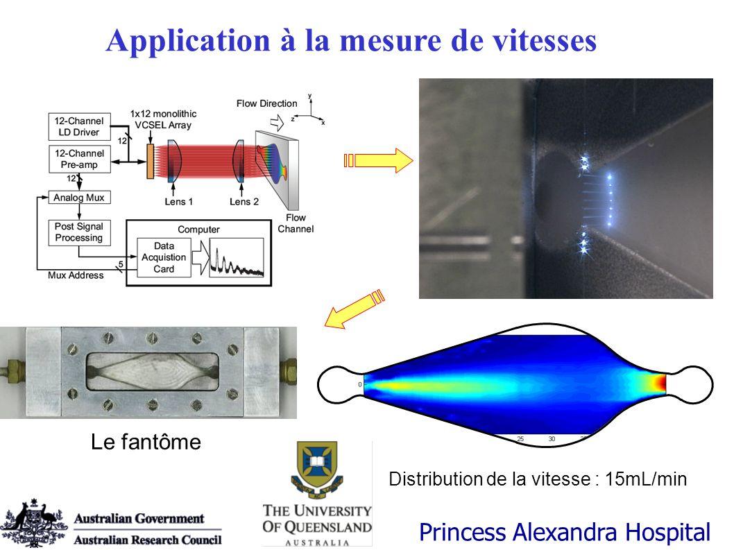 Le fantôme Distribution de la vitesse : 15mL/min Princess Alexandra Hospital Application à la mesure de vitesses