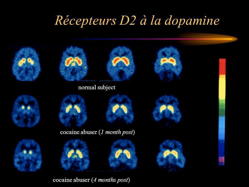 Récepteurs D2 à la dopamine normal subject cocaine abuser (1 month post) cocaine abuser (4 months post)
