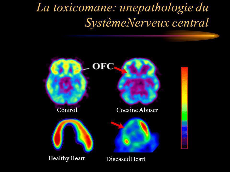 La toxicomane: unepathologie du SystèmeNerveux central Healthy Heart Diseased Heart Control Cocaine Abuser