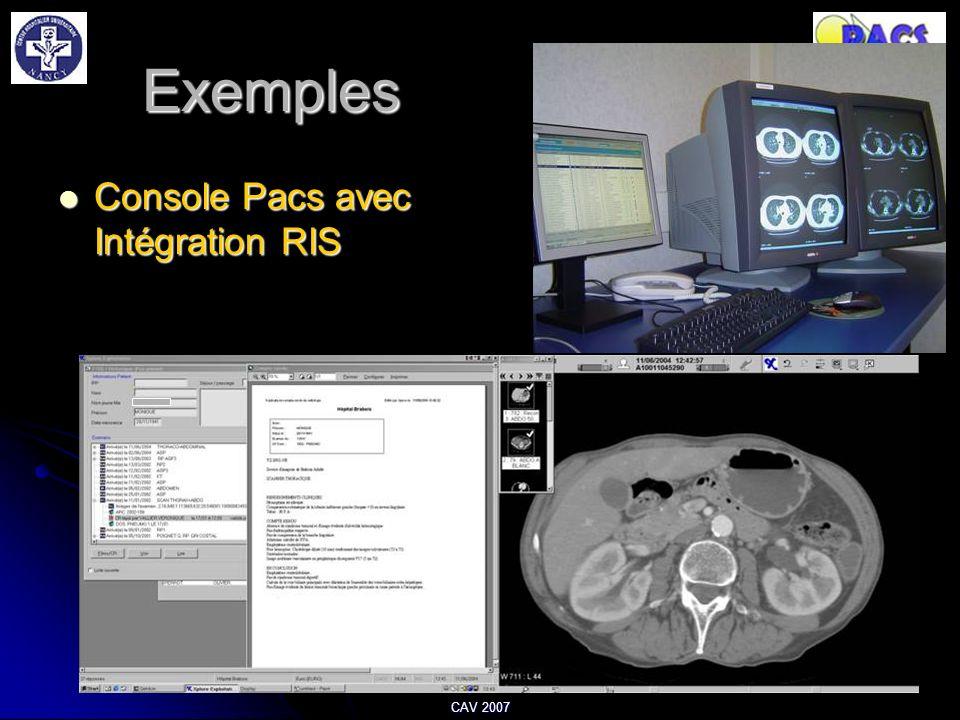 Exemples Console Pacs avec Intégration RIS Console Pacs avec Intégration RIS