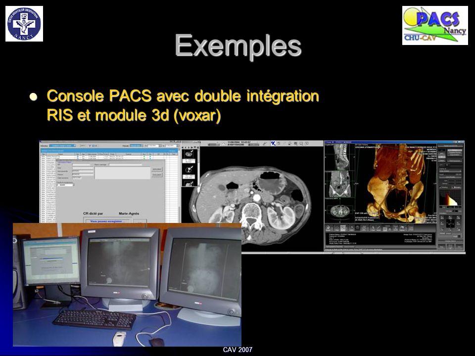 CAV 2007 Exemples Console PACS avec double intégration RIS et module 3d (voxar) Console PACS avec double intégration RIS et module 3d (voxar)