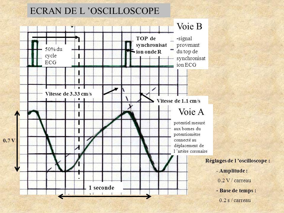 Réglages de l oscilloscope : - Amplitude : 0.2 V / carreau - Base de temps : 0.2 s / carreau Fig.27: Le simulateur ECG est réglé à 57 bpm 0.7 V 50% du