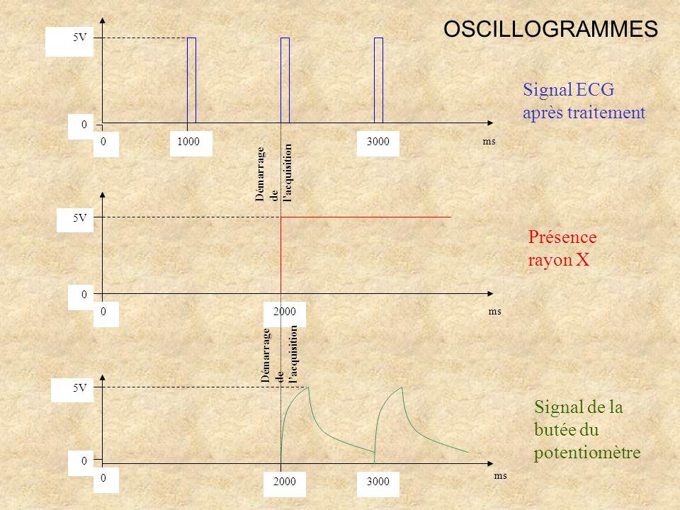 0 0 1000 2000 3000 5V 0 0 0 0 2000 3000 5V Signal ECG après traitement Présence rayon X ms Signal de la butée du potentiomètre Démarrage de lacquisiti