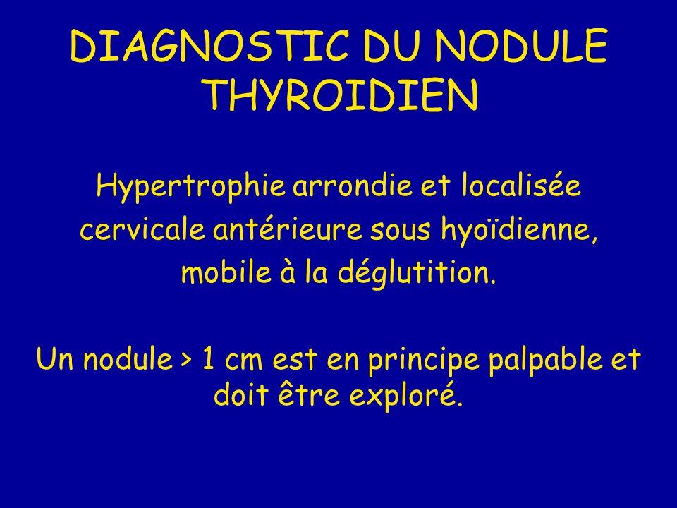 DIAGNOSTIC DU NODULE THYROIDIEN Hypertrophie arrondie et localisée cervicale antérieure sous hyoïdienne, mobile à la déglutition. Un nodule > 1 cm est