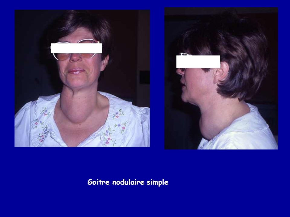 Goitre nodulaire simple