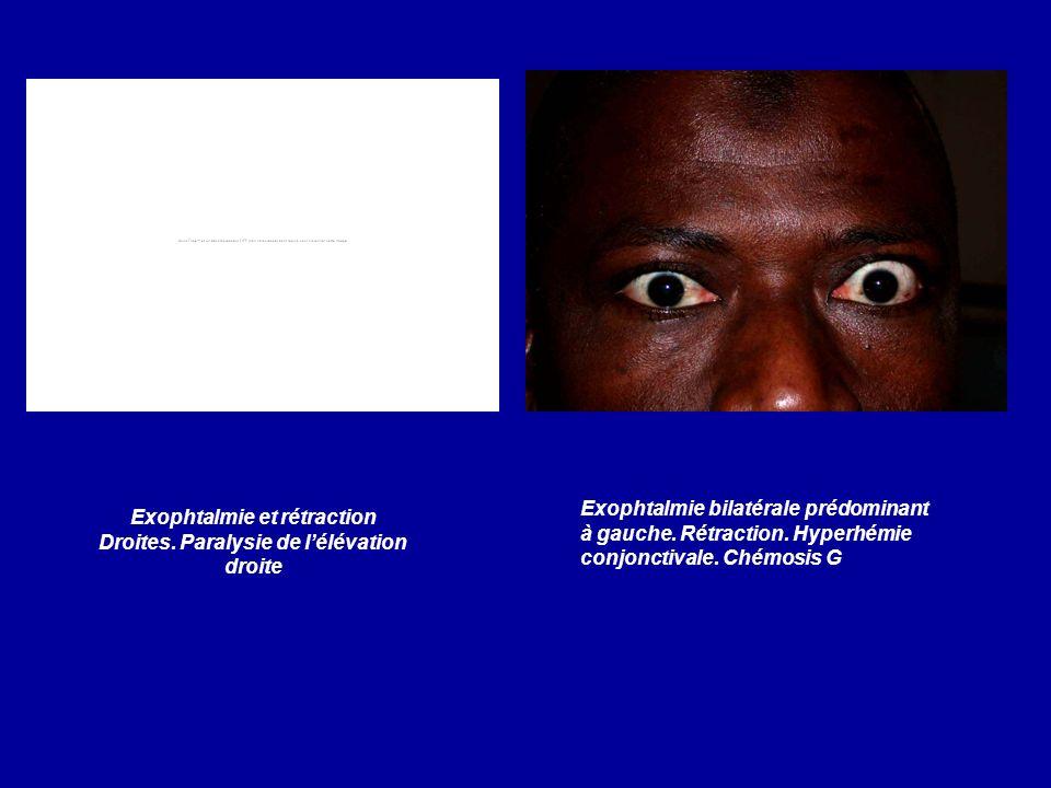 Exophtalmie et rétraction Droites. Paralysie de lélévation droite Exophtalmie bilatérale prédominant à gauche. Rétraction. Hyperhémie conjonctivale. C