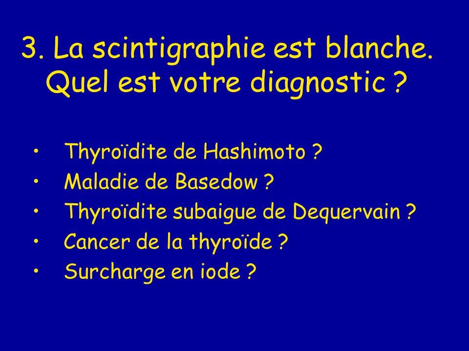 3. La scintigraphie est blanche. Quel est votre diagnostic ? Thyroïdite de Hashimoto ? Maladie de Basedow ? Thyroïdite subaigue de Dequervain ? Cancer