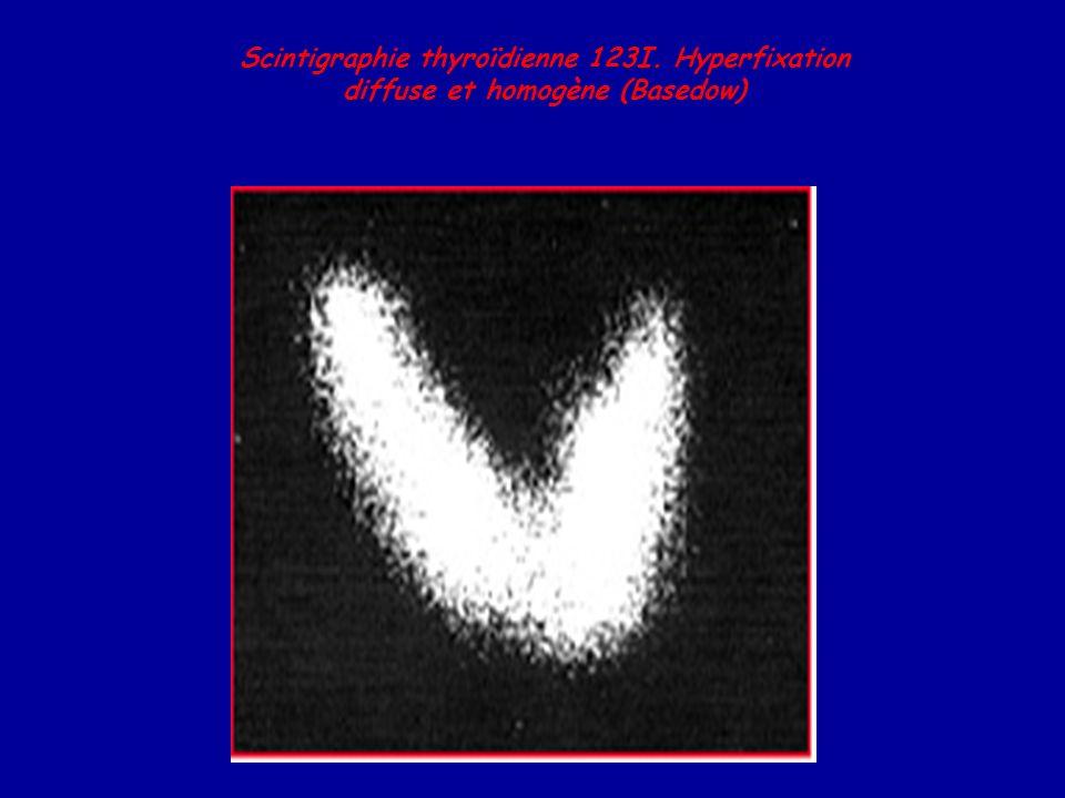 Scintigraphie thyroïdienne 123I. Hyperfixation diffuse et homogène (Basedow)