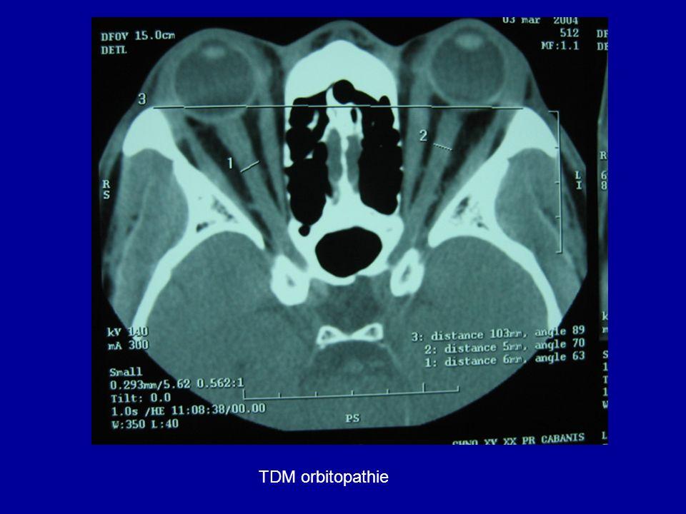 TDM orbitopathie