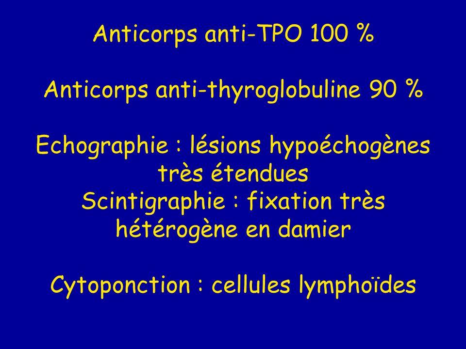 Anticorps anti-TPO 100 % Anticorps anti-thyroglobuline 90 % Echographie : lésions hypoéchogènes très étendues Scintigraphie : fixation très hétérogène