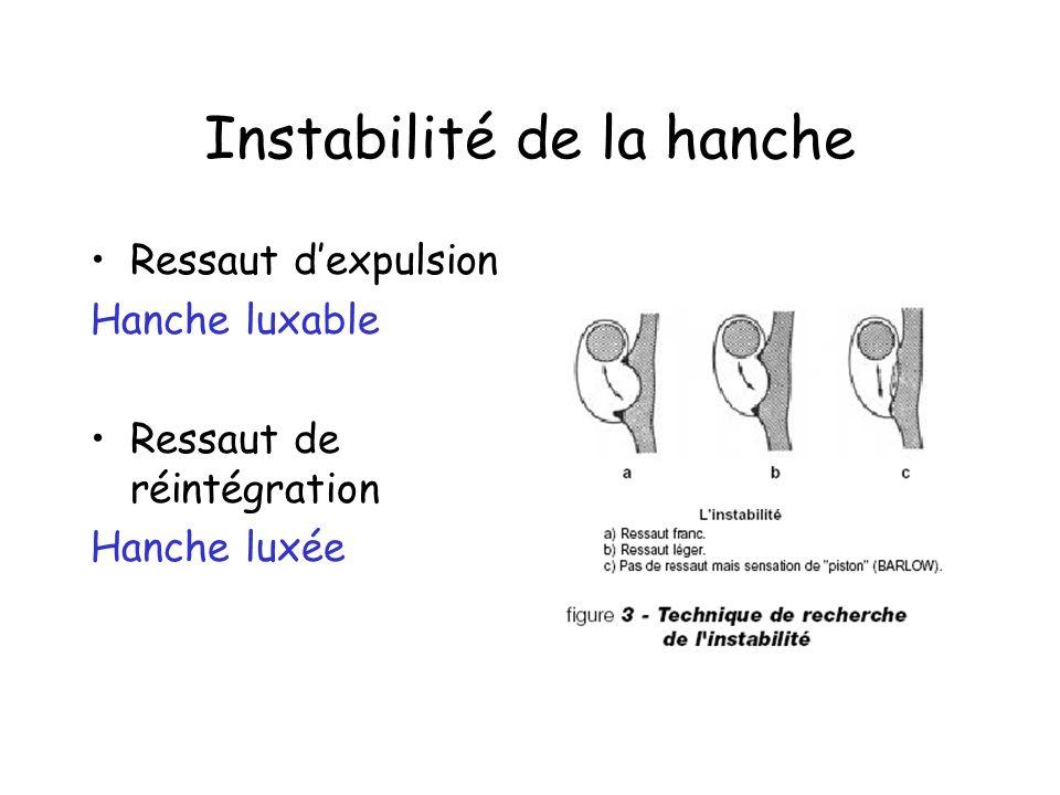Instabilité de la hanche Ressaut dexpulsion Hanche luxable Ressaut de réintégration Hanche luxée