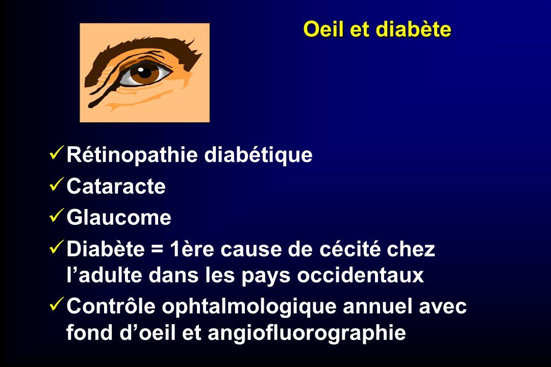 Oeil et diabète Rétinopathie diabétique Cataracte Glaucome Diabète = 1ère cause de cécité chez ladulte dans les pays occidentaux Contrôle ophtalmologi