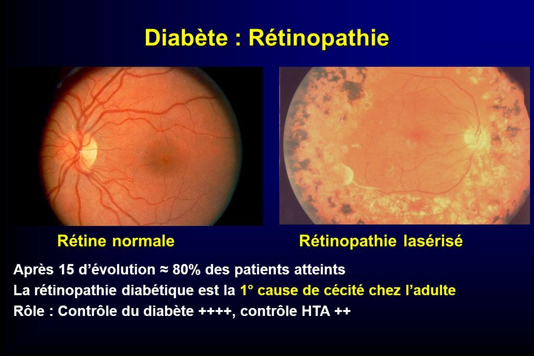 Diabète : Rétinopathie Rétine normale Rétinopathie lasérisé Après 15 dévolution 80% des patients atteints La rétinopathie diabétique est la 1° cause d