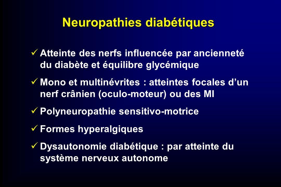 Neuropathies diabétiques Atteinte des nerfs influencée par ancienneté du diabète et équilibre glycémique Mono et multinévrites : atteintes focales dun