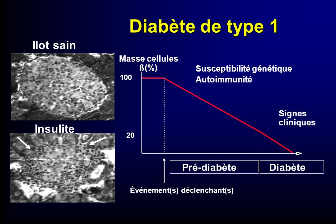 Diabète de type 1 Événement(s) déclenchant(s) Masse cellules ß(%) 100 20 Pré-diabète Autoimmunité Signes cliniques Insulite Susceptibilité génétique I