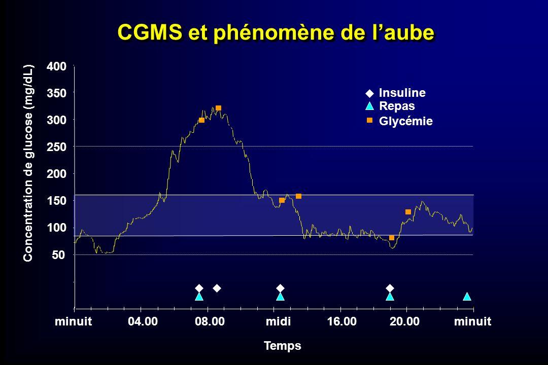 CGMS et phénomène de laube Temps minuit04.0008.00midi16.0020.00minuit 50 100 150 200 250 300 350 400 Concentration de glucose (mg/dL) Insuline Repas G
