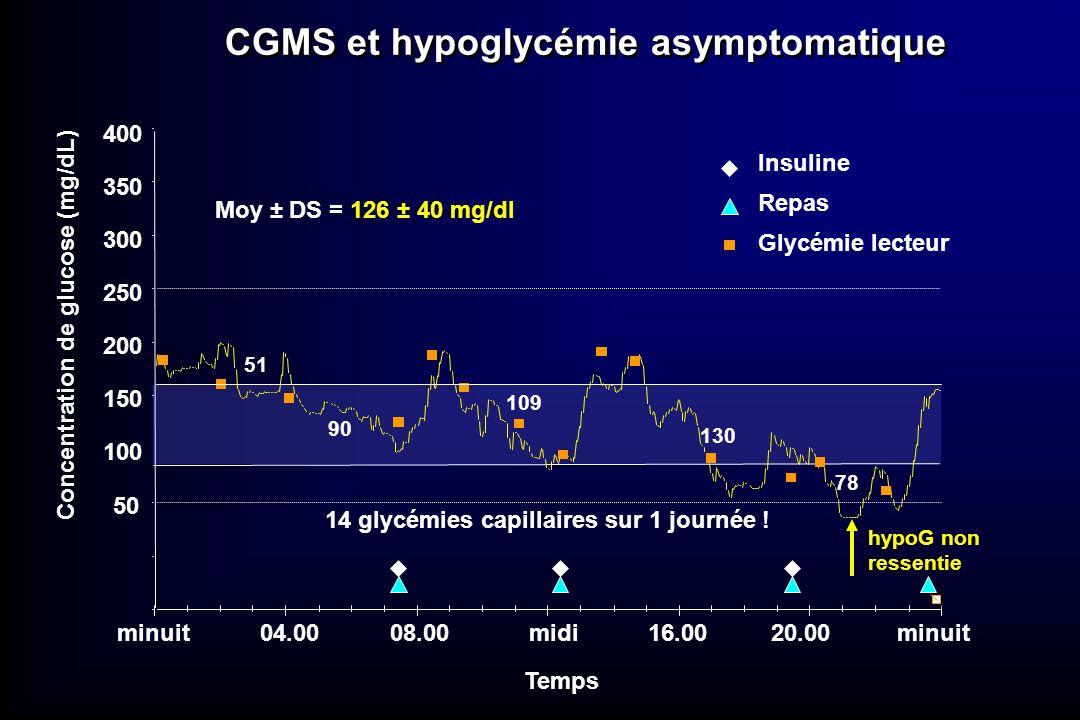 Insuline Repas Glycémie lecteur CGMS et hypoglycémie asymptomatique hypoG non ressentie 14 glycémies capillaires sur 1 journée ! Moy ± DS = 126 ± 40 m