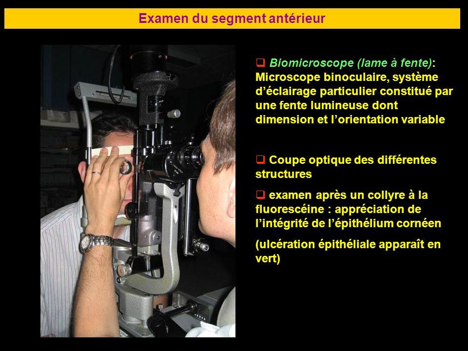 67 Examen du segment antérieur Biomicroscope (lame à fente): Microscope binoculaire, système déclairage particulier constitué par une fente lumineuse