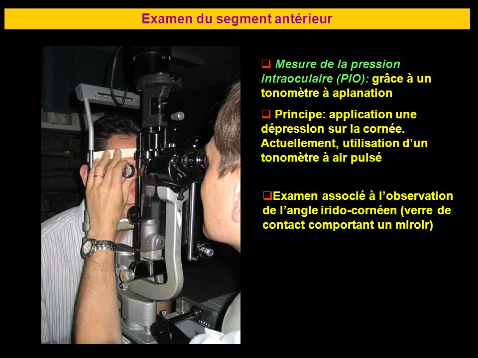 68 Examen du segment antérieur Mesure de la pression intraoculaire (PIO): grâce à un tonomètre à aplanation Principe: application une dépression sur l
