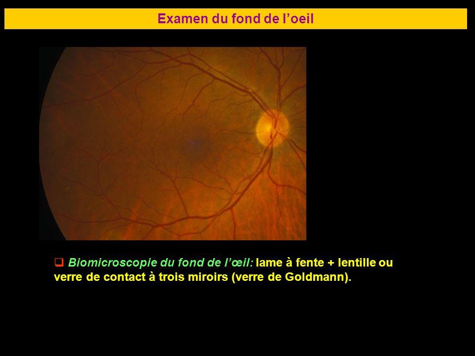 69 Examen du fond de loeil Biomicroscopie du fond de lœil: lame à fente + lentille ou verre de contact à trois miroirs (verre de Goldmann).
