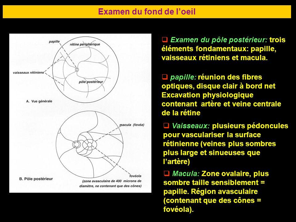 70 Examen du fond de loeil Examen du pôle postérieur: trois éléments fondamentaux: papille, vaisseaux rétiniens et macula. papille: réunion des fibres